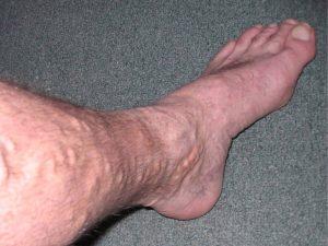 Kŕčové žily na nohe muža